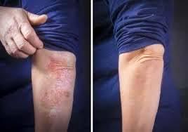 Dermolios – voor huidproblemen - kruidvat – opmerkingen – crème